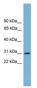 Western blot - Anti-HLA-DQA2 antibody (ab105760)