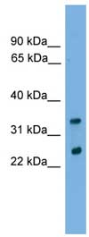 Western blot - Anti-CHMP4B antibody (ab105767)