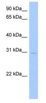 Western blot - GSTA5  antibody (ab105775)