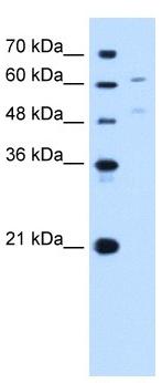 Western blot - UGT1A4 antibody (ab105781)