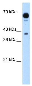 Western blot - PUS7 antibody (ab105790)