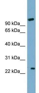 Western blot - ARL8B antibody (ab105792)