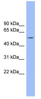 Western blot - TMCO6 antibody (ab105794)