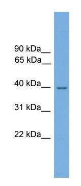 Western blot - NMRAL1 antibody (ab105801)