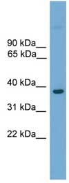 Western blot - FOXE1 antibody (ab105815)
