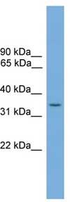 Western blot - SLC35A4 antibody (ab105817)