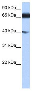 Western blot - ZNF879 antibody (ab105829)