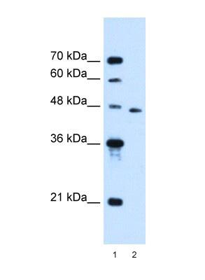 Western blot - SLC16A12 antibody (ab105834)