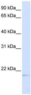 Western blot - C14orf180 antibody (ab105840)