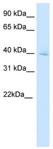 Western blot - OTX3 antibody (ab105867)