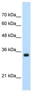 Western blot - APOBEC3D antibody (ab105869)