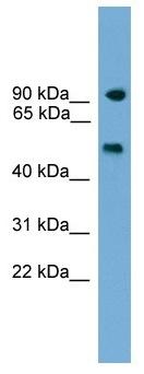 Western blot - PARP8 antibody (ab105880)