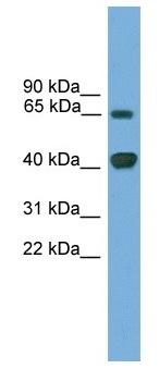 Western blot - LMX1A antibody (ab105882)