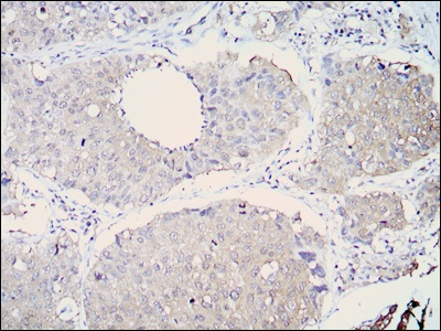 Immunohistochemistry (Formalin/PFA-fixed paraffin-embedded sections) - ALDH1A1 antibody [5A11] (ab105920)