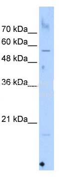 Western blot - SEPN1 antibody (ab105943)