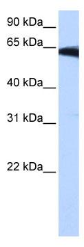 Western blot - Anti-PIGW antibody (ab105946)
