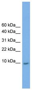 Western blot - KRTAP23-1 antibody (ab105949)