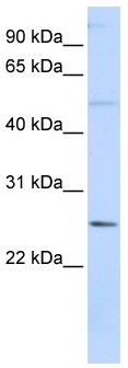 Western blot - FTHL17 antibody (ab105955)