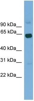 Western blot - LCORL antibody (ab105962)