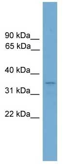 Western blot - Duxbl antibody (ab105965)