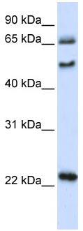 Western blot - UNCX antibody (ab105966)