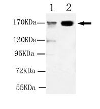 Western blot - KDM5C / Jarid1C / SMCX antibody (ab106068)