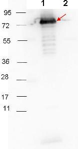 Western blot - Anti-Surface Lipoprotein p27 antibody (ab106086)