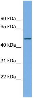 Western blot - LIPI antibody (ab106123)