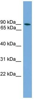Western blot - ZNF782 antibody (ab106128)