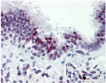 Immunohistochemistry (Formalin/PFA-fixed paraffin-embedded sections) - CASZ1 antibody (ab106148)