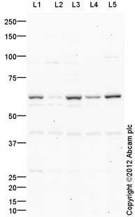 Western blot - Anti-Yes1 antibody (ab106158)
