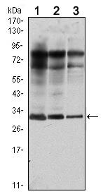 Western blot - Rab25 antibody [3F12] (ab106175)
