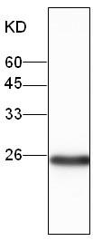 Western blot - D4 GDI antibody [16] (ab106196)