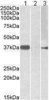 Western blot - MYF6 antibody (ab106253)