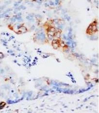 Immunohistochemistry (Formalin/PFA-fixed paraffin-embedded sections) - Glutathione S Transferase pi antibody (ab106268)