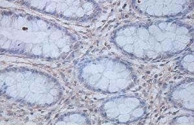 Immunohistochemistry (Formalin/PFA-fixed paraffin-embedded sections) - IL12 p40 antibody (ab106270)
