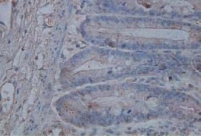 Immunohistochemistry (Formalin/PFA-fixed paraffin-embedded sections) - IL17B antibody (ab106272)
