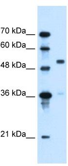 Western blot - SLC37A3 antibody (ab106335)