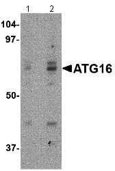 Western blot - ATG16L1 antibody (ab106354)