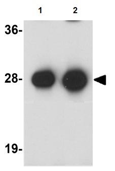 Western blot - Synaptogyrin 3 antibody (ab106460)