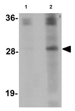 Western blot - Synaptogyrin 4 antibody (ab106461)