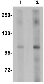 Western blot - KDM4A / JHDM3A / JMJD2A antibody (ab106472)