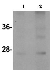 Western blot - TINP1 antibody (ab106484)