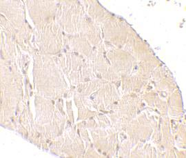 Immunohistochemistry (Formalin/PFA-fixed paraffin-embedded sections) - Wnt10a antibody (ab106522)