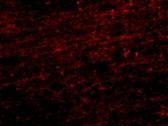 Immunocytochemistry/ Immunofluorescence - CLIP170 antibody (ab106524)
