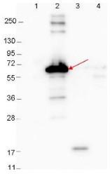 Western blot - Anti-Decorin Binding Protein A antibody (ab106546)