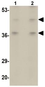 Western blot - BFAR antibody (ab106547)