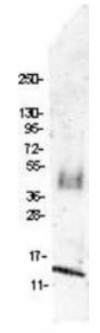 Western blot - Anti-Macrophage Inflammatory Protein 1 beta antibody (ab106548)