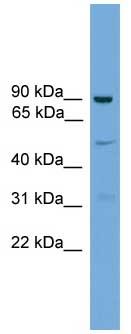 Western blot - L3MBTL3 antibody (ab106573)