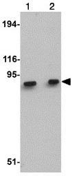 Western blot - MACC1 antibody (ab106579)